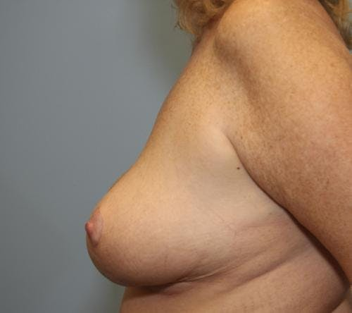 Breast Reduction Gallery - Patient 58490434 - Image 4