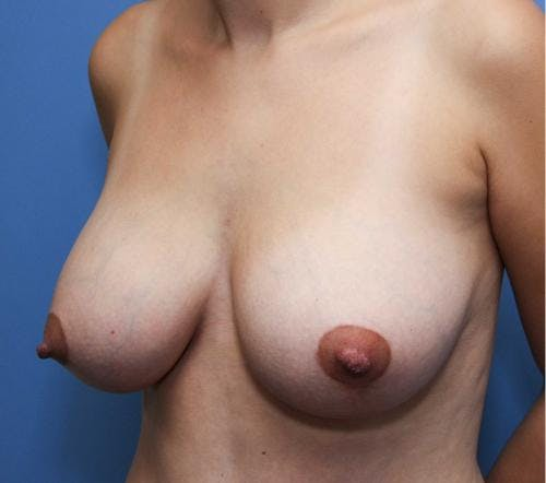 Breast Lift with Augmentation Gallery - Patient 58490435 - Image 4