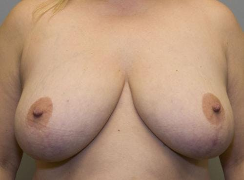 Breast Reduction Gallery - Patient 58490436 - Image 1