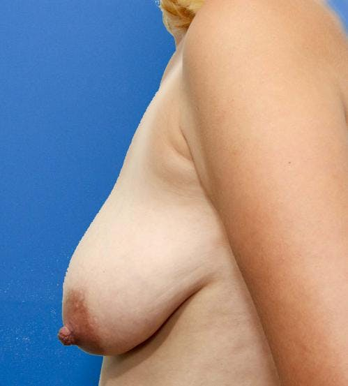 Breast Lift with Augmentation Gallery - Patient 58490435 - Image 5