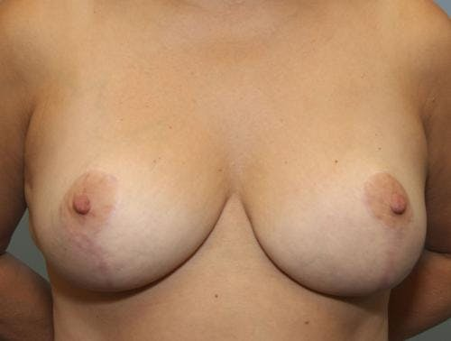 Breast Reduction Gallery - Patient 58490436 - Image 2