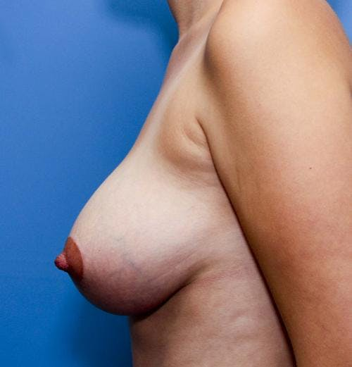 Breast Lift with Augmentation Gallery - Patient 58490435 - Image 6