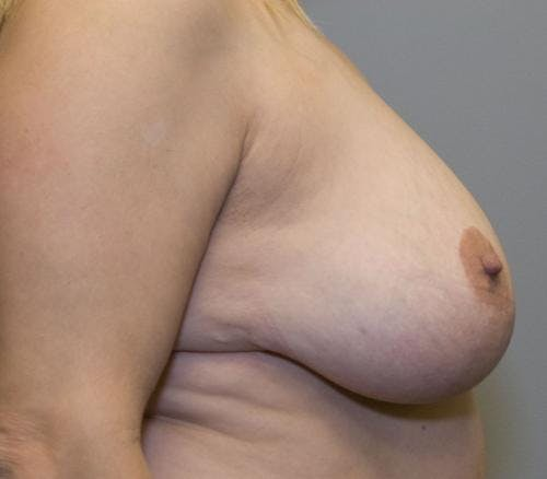 Breast Reduction Gallery - Patient 58490436 - Image 3