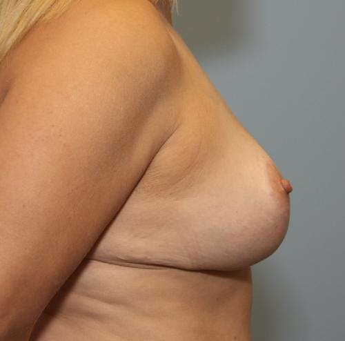Breast Reduction Gallery - Patient 58490436 - Image 4