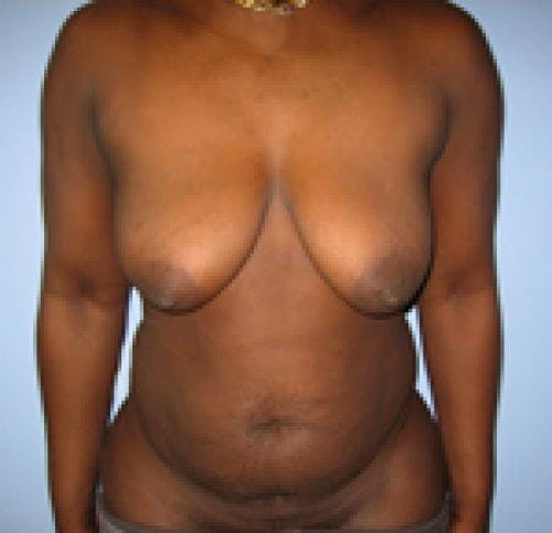 Breast Lift with Augmentation Gallery - Patient 58490437 - Image 1