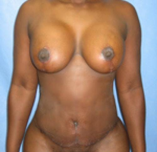 Breast Lift with Augmentation Gallery - Patient 58490437 - Image 2