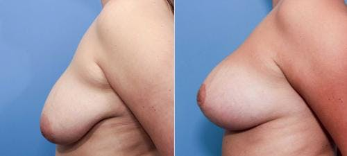 Breast Lift with Augmentation Gallery - Patient 58490444 - Image 3