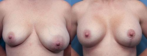 Breast Lift with Augmentation Gallery - Patient 58490446 - Image 1