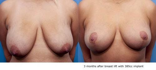 Breast Lift with Augmentation Gallery - Patient 58490447 - Image 1