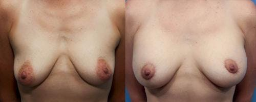 Breast Lift with Augmentation Gallery - Patient 58490449 - Image 1