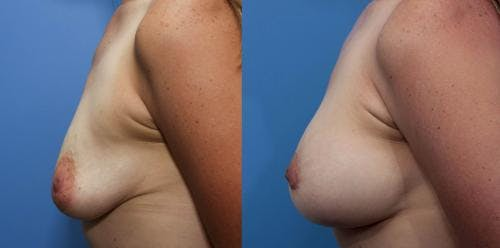 Breast Lift with Augmentation Gallery - Patient 58490449 - Image 2