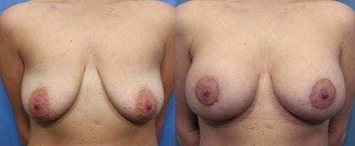 Breast Lift with Augmentation Gallery - Patient 58490450 - Image 1