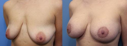 Breast Lift with Augmentation Gallery - Patient 58490450 - Image 2