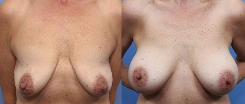 Breast Lift with Augmentation Gallery - Patient 58490451 - Image 1
