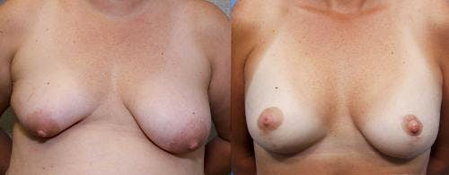 Breast Lift with Augmentation Gallery - Patient 58490452 - Image 1