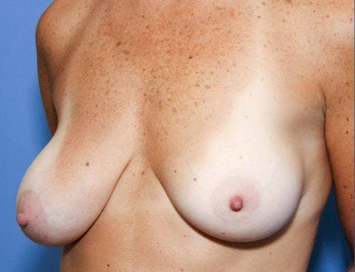 Breast Lift with Augmentation Gallery - Patient 58490456 - Image 1