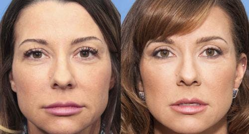 Eyelid Surgery Gallery - Patient 58490455 - Image 1