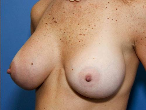 Breast Lift with Augmentation Gallery - Patient 58490456 - Image 2