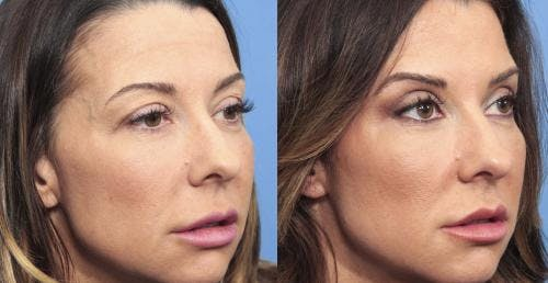 Eyelid Surgery Gallery - Patient 58490455 - Image 2