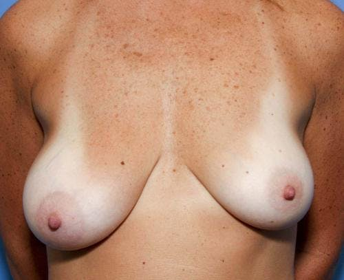 Breast Lift with Augmentation Gallery - Patient 58490456 - Image 3