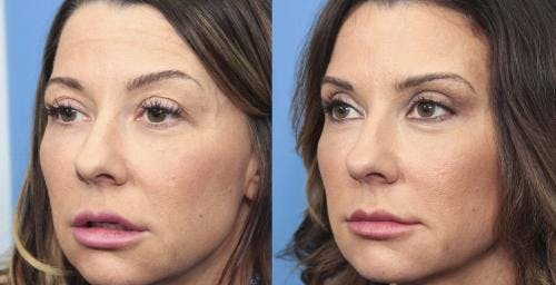 Eyelid Surgery Gallery - Patient 58490455 - Image 3