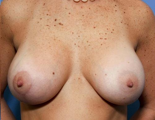 Breast Lift with Augmentation Gallery - Patient 58490456 - Image 4