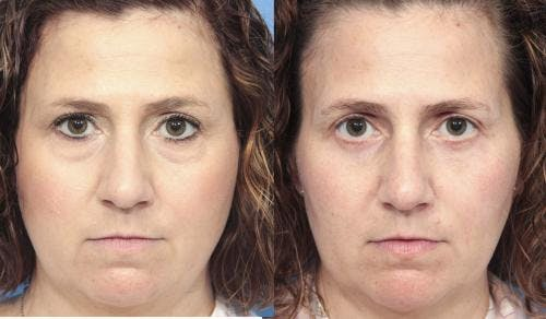 Eyelid Surgery Gallery - Patient 58490458 - Image 1