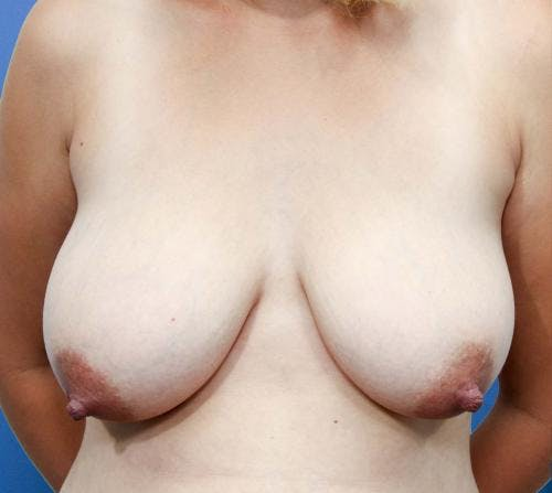 Breast Lift with Augmentation Gallery - Patient 58490460 - Image 1