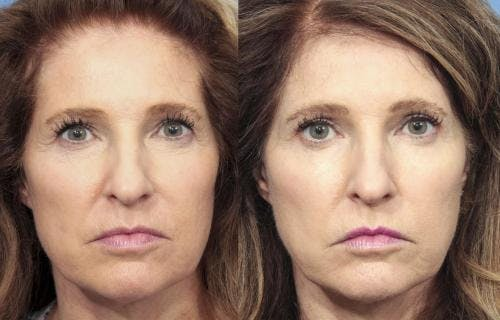Eyelid Surgery Gallery - Patient 58490459 - Image 1