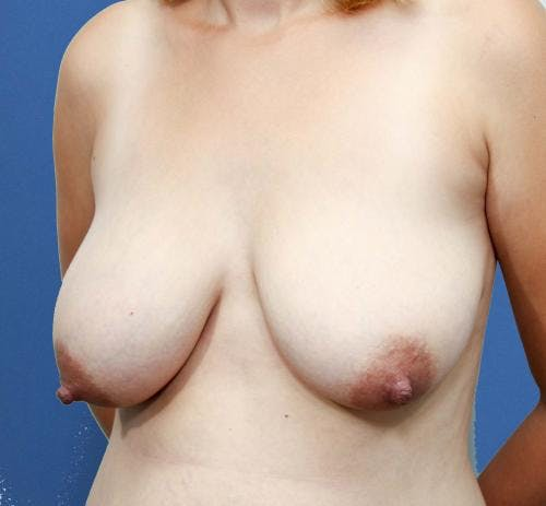Breast Lift with Augmentation Gallery - Patient 58490460 - Image 3