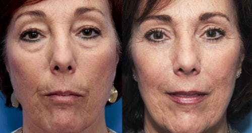 Eyelid Surgery Gallery - Patient 58490461 - Image 1