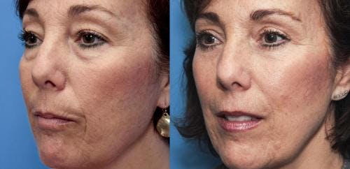 Eyelid Surgery Gallery - Patient 58490461 - Image 3