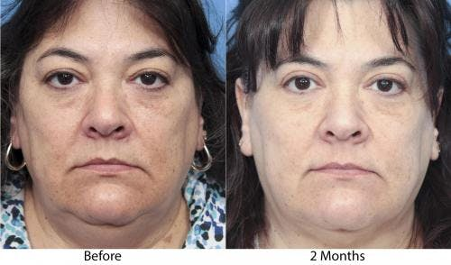 Eyelid Surgery Gallery - Patient 58490463 - Image 1