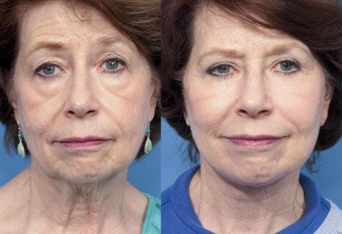 Eyelid Surgery Gallery - Patient 58490465 - Image 1