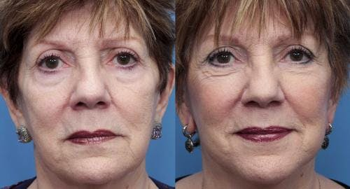 Face Lift Gallery - Patient 58490467 - Image 1