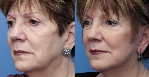 Face Lift Gallery - Patient 58490467 - Image 2