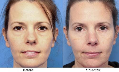 Eyelid Surgery Gallery - Patient 58490468 - Image 1