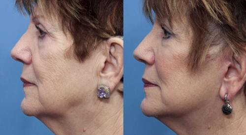 Face Lift Gallery - Patient 58490467 - Image 3