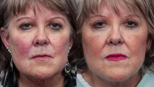 Face Lift Gallery - Patient 58490469 - Image 1