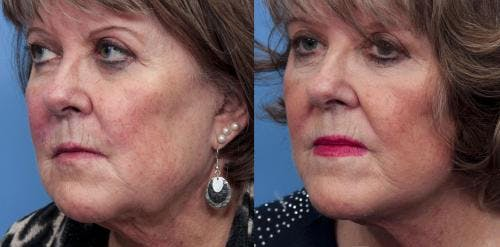 Face Lift Gallery - Patient 58490469 - Image 2