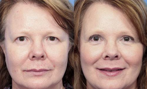 Eyelid Surgery Gallery - Patient 58490470 - Image 1