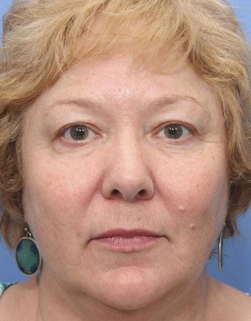 Face Lift Gallery - Patient 58490475 - Image 1