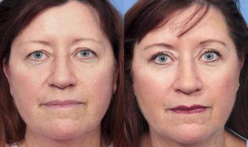 Eyelid Surgery Gallery - Patient 58490471 - Image 1