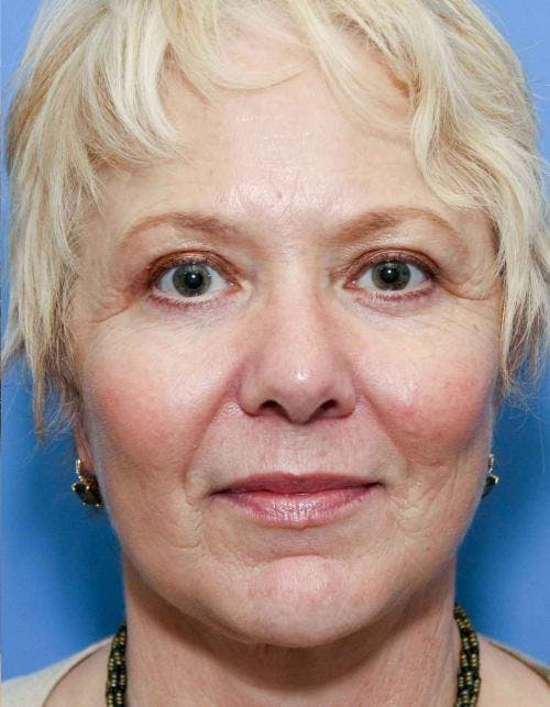 Face Lift Gallery - Patient 58490475 - Image 2