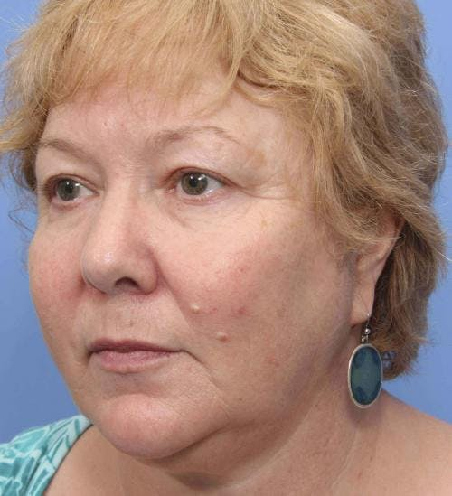 Face Lift Gallery - Patient 58490475 - Image 3