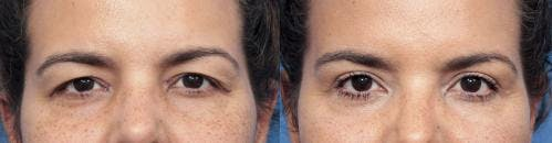 Eyelid Surgery Gallery - Patient 58490472 - Image 1