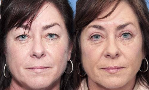 Eyelid Surgery Gallery - Patient 58490474 - Image 1