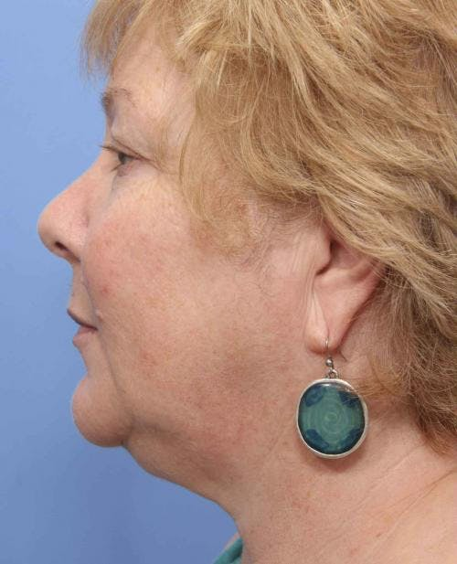 Face Lift Gallery - Patient 58490475 - Image 5