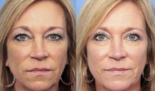 Eyelid Surgery Gallery - Patient 58490477 - Image 1
