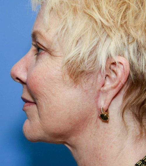 Face Lift Gallery - Patient 58490475 - Image 6